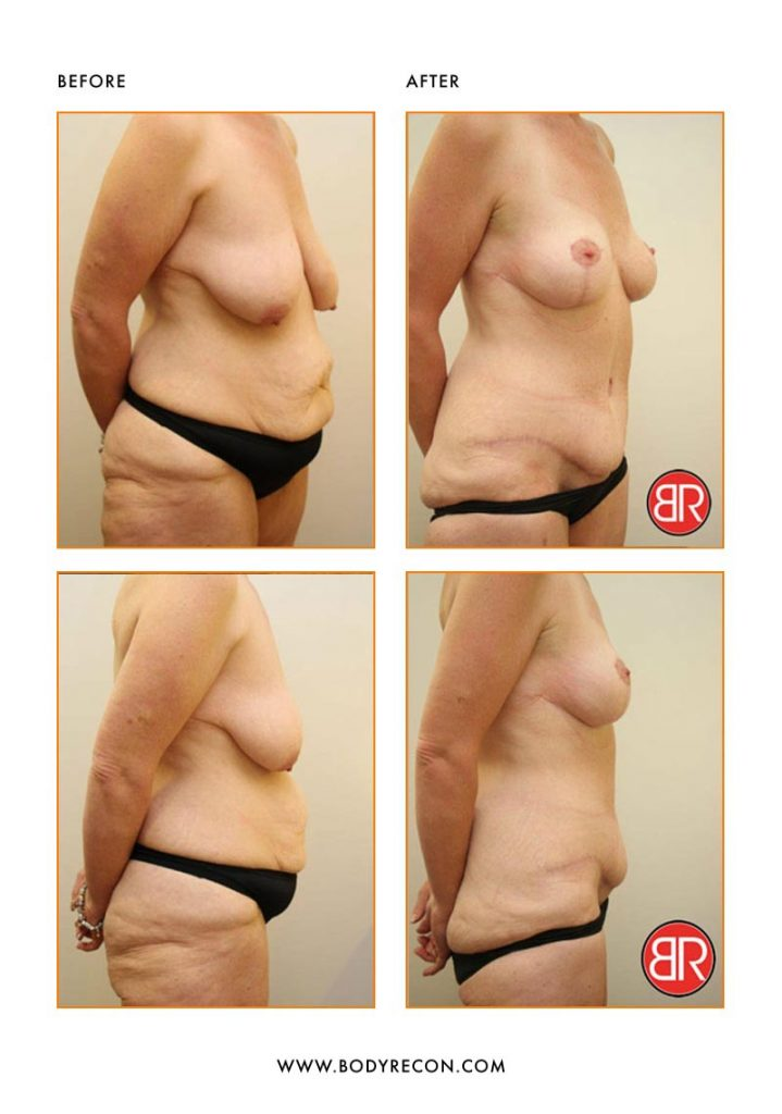 Abdominoplasty Patient