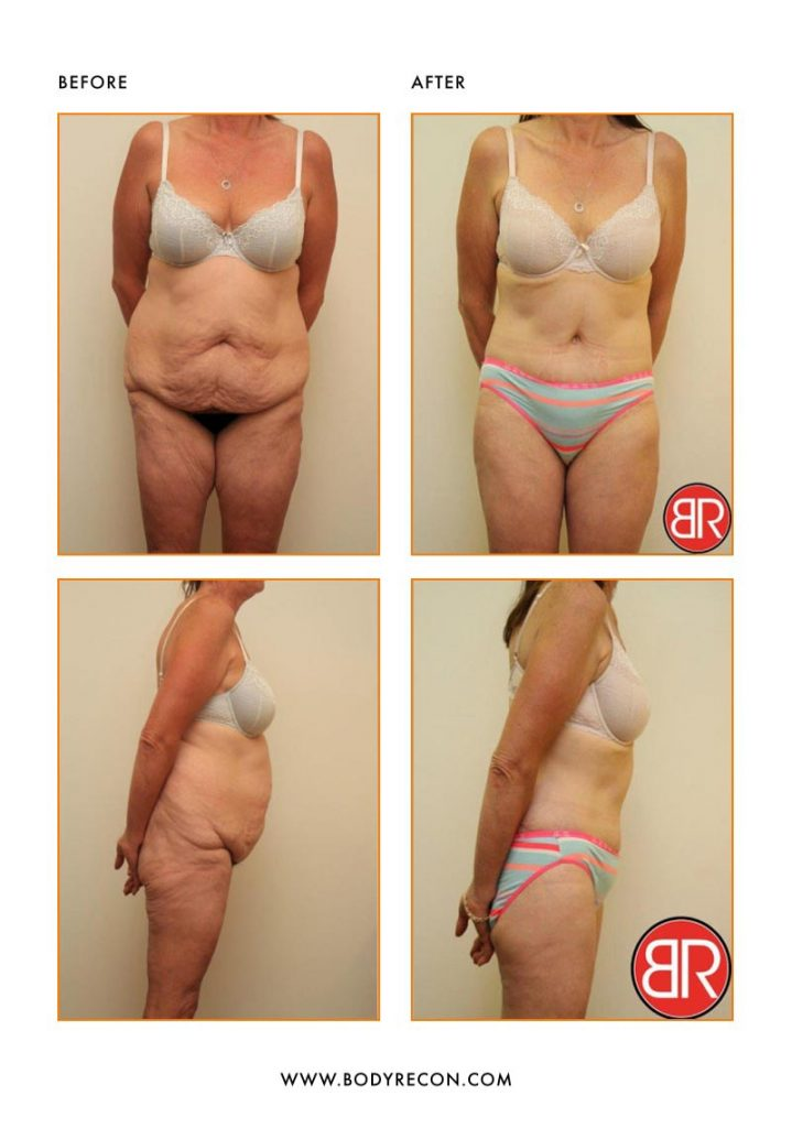 Abdominoplasty Patient-Before After