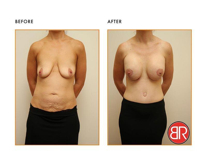 Abdominoplasty Patient