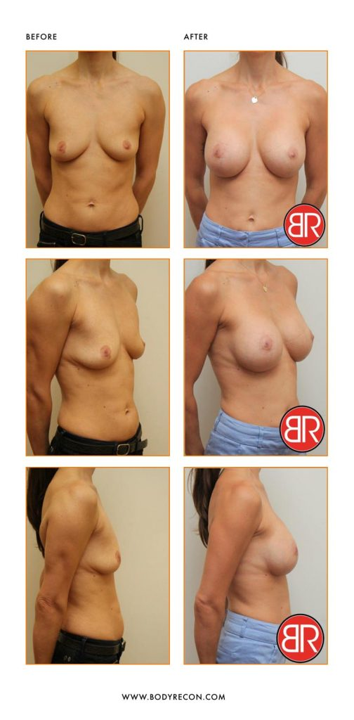 AnatomicalImplants Patient-Before After