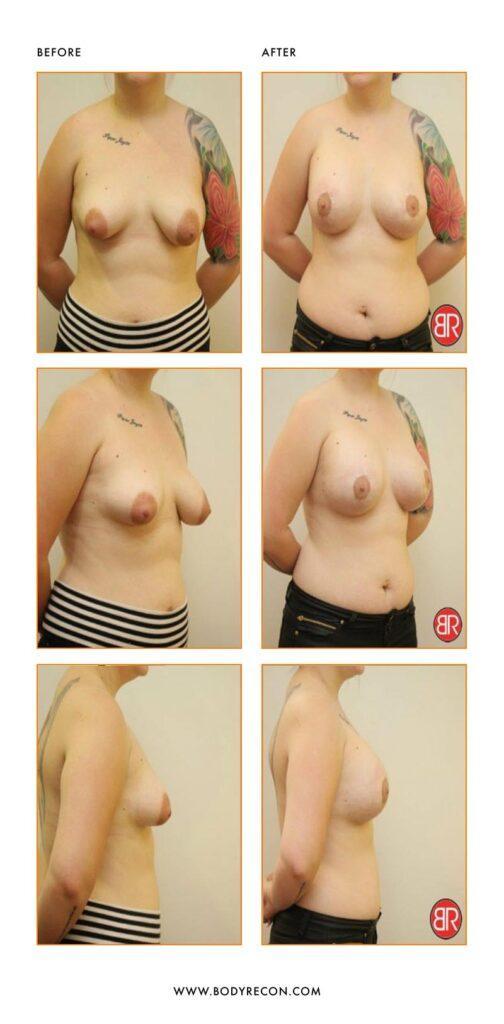 Augmentation Mastopexy Patient