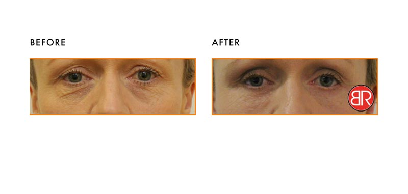Blepharoplasty Patient-Before After