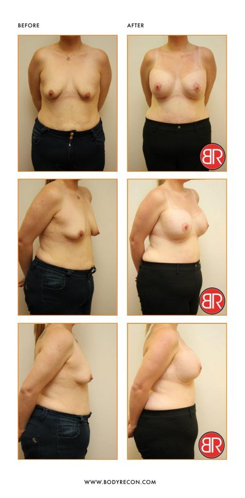 Breast Asymmetry Patient