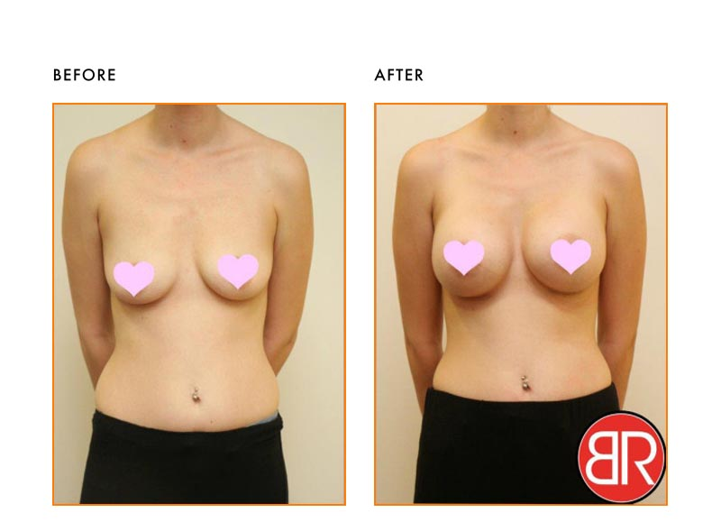 Breast Augmentation Patient-Before After