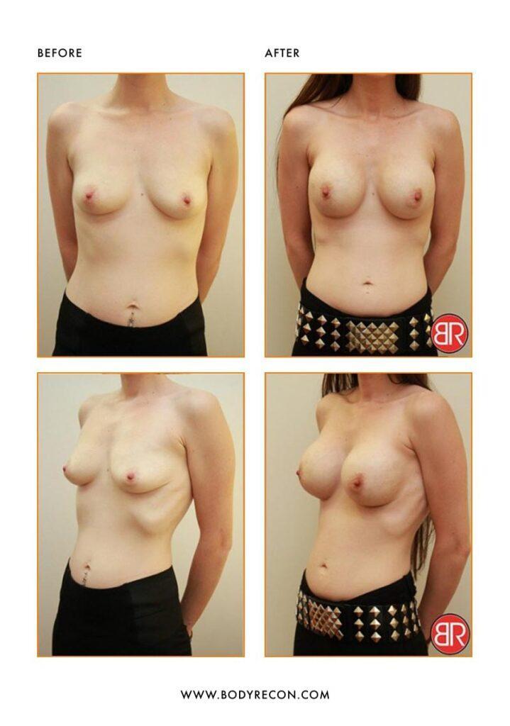 Breast Augmentation Patient