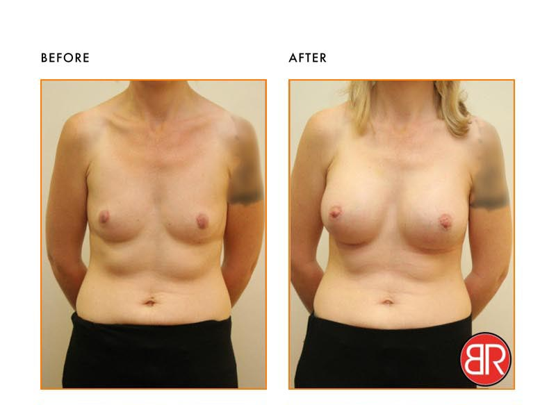 Breast Augmentation Patient- Before After