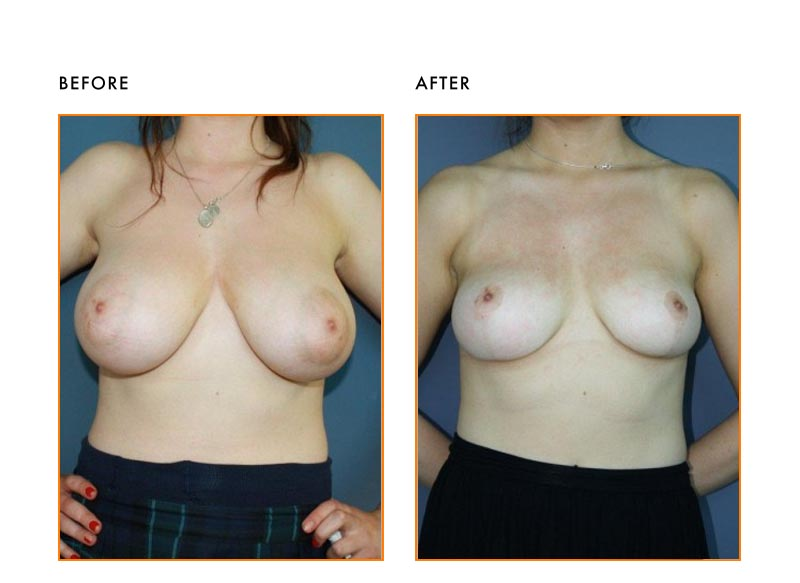 Breast Reduction for Patient 3293
