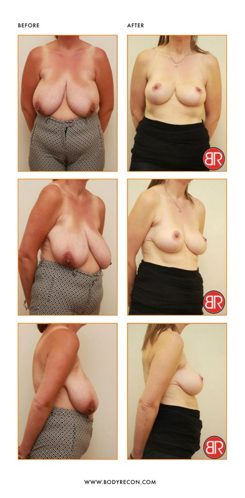 Breast Reduction Patient-Before After