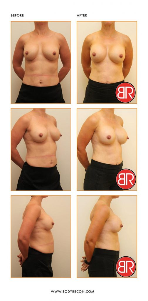 Breast Revision Patient- Before After