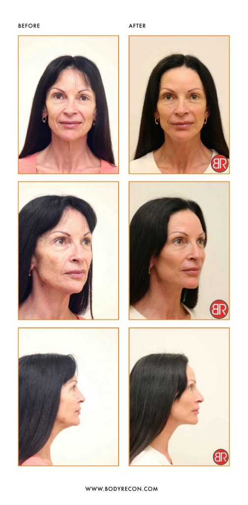 Facial Rejuvenation Patient