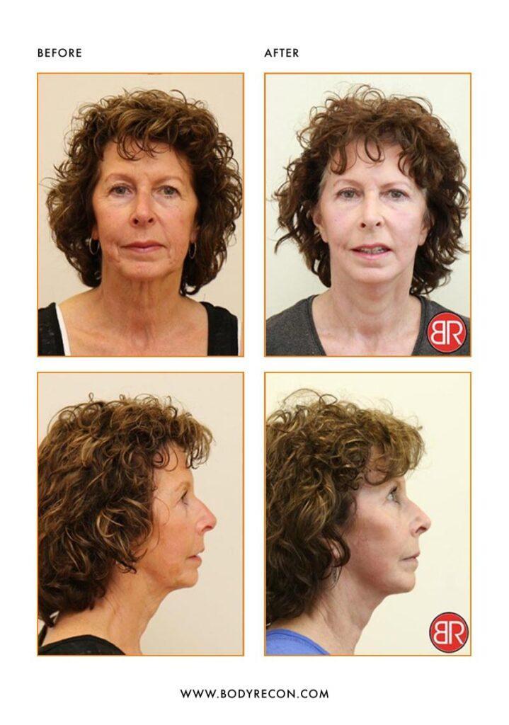 Facial Rejuvenation Patient