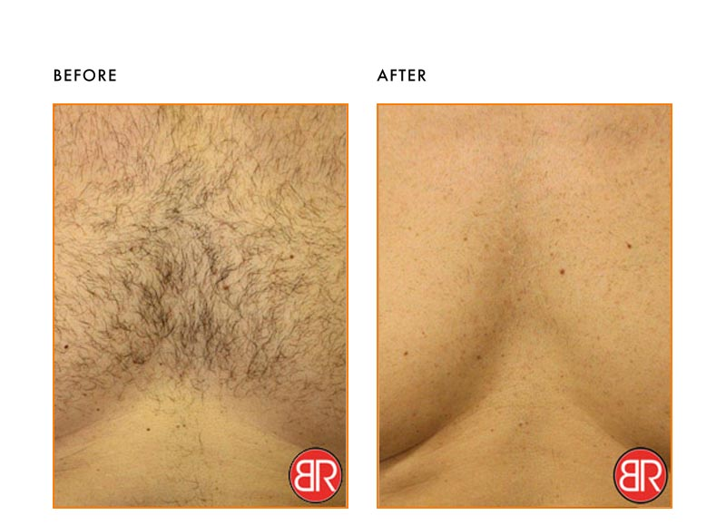 Laser Hair Removal Patient