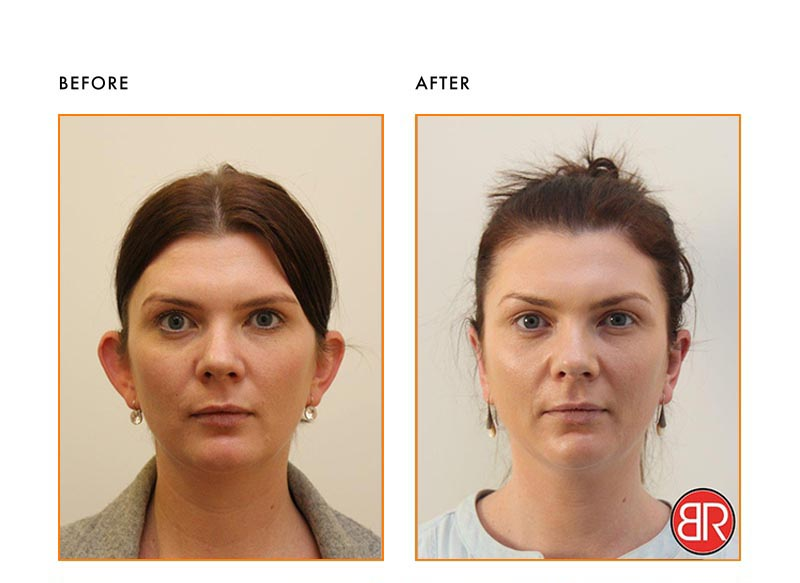 Otoplasty Patient