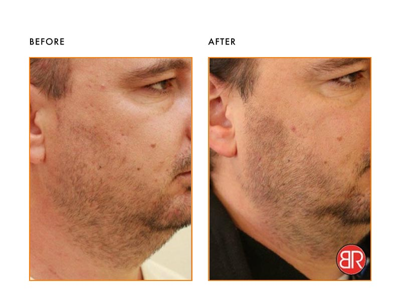 Skin Treatment Patient