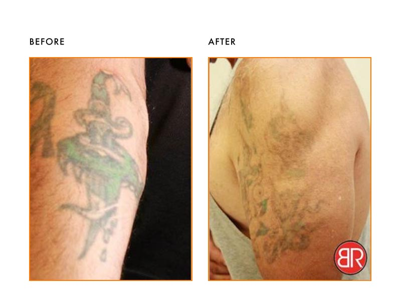 Tattoo Removal Patient