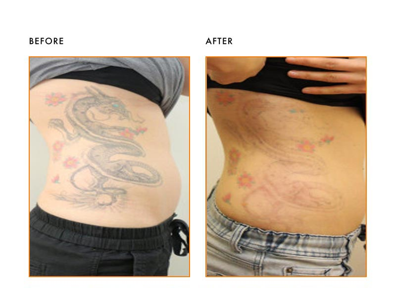 Tattoo Removal Patient-Before After
