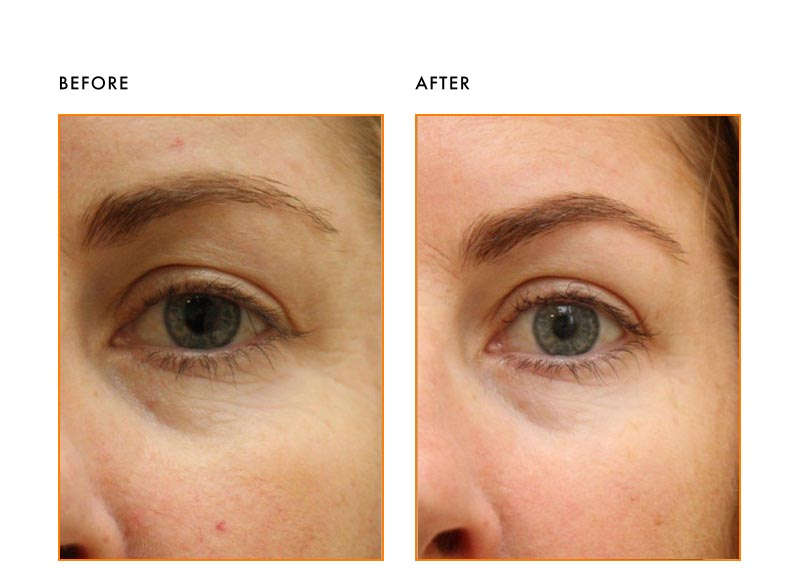 Vascular Lesions Patient- Before After