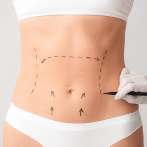 Body Recon Clinic Geelong - Plastic and Reconstructive Surgery
